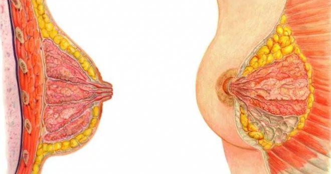 papilloma intraduttale seno sintomi)